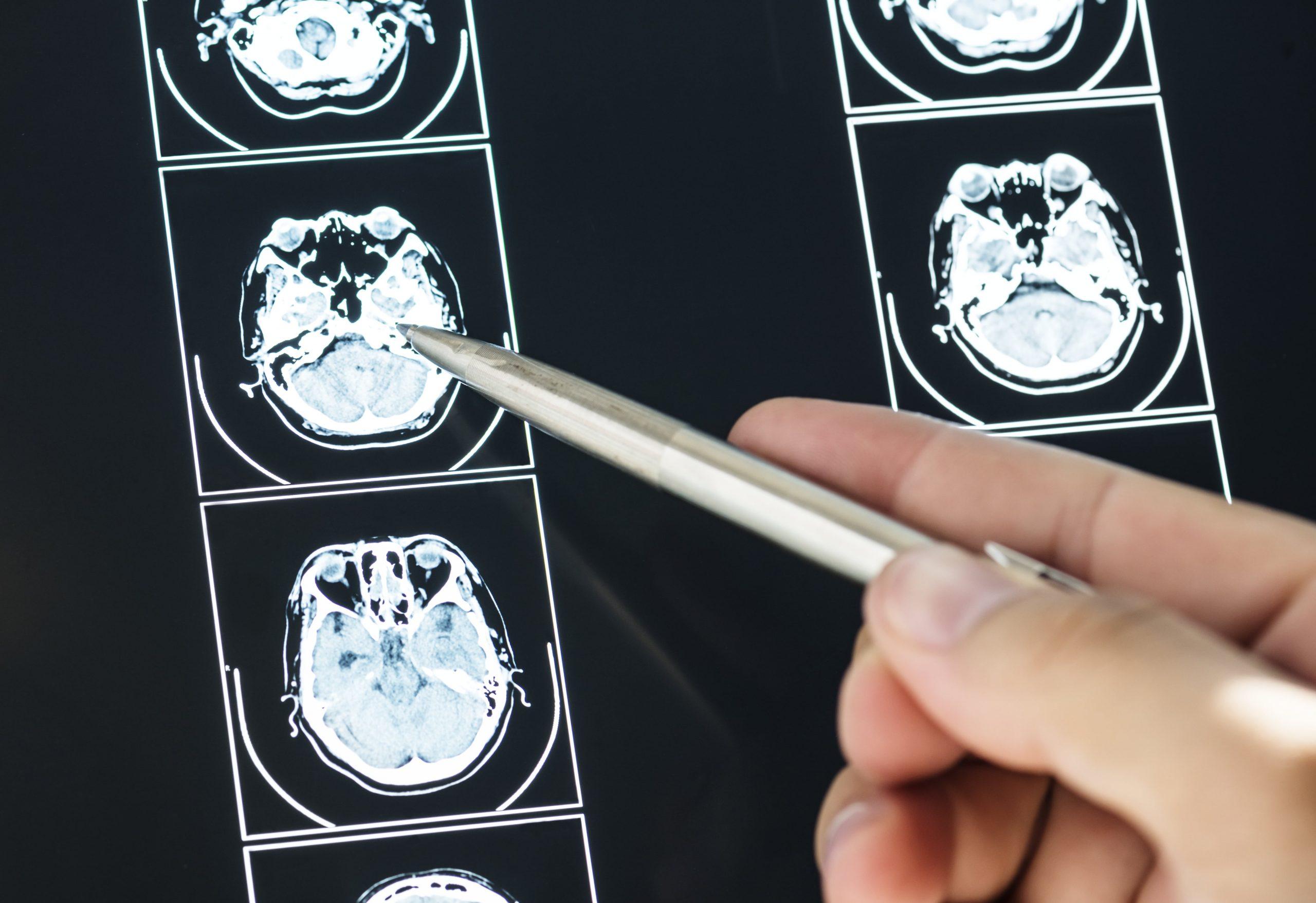 closeup-brain-mri-scan-result